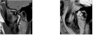 risonanza magnetica articolazioni temporo-mandibolari