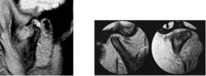 articolazioni temporo-mandibolari RM