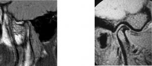 articolazioni temporo-mandibolari risonanza magnetica